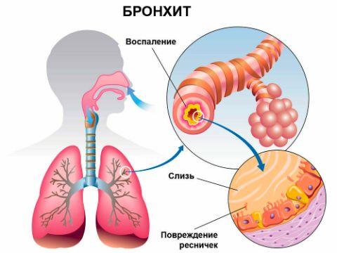 Лечение бронхита галотерапией