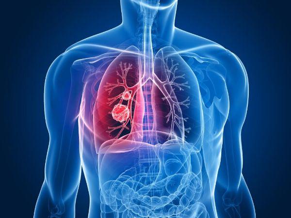 БАДы NSP при онкологии